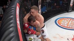 Brett Martinez vs. Mike Wilkins